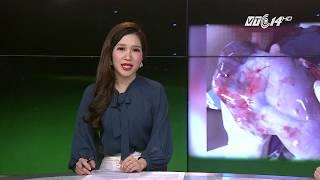 VTC14 | Nghệ An: Bé gái chào đời vẫn còn nguyên túi ối