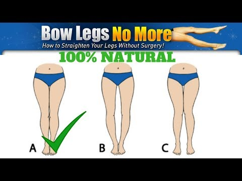 myma shocking plan - How to fix bow legs natural   clickbank review