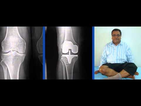Chirayu Hospital For Orthopedic Surgeon In Ahmedabad