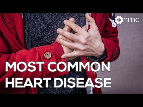 Coronary Heart Disease NMC health care 07052013