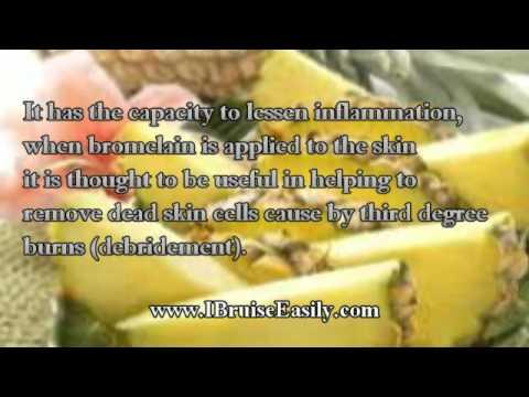 The amazing health benefits of Bromelain