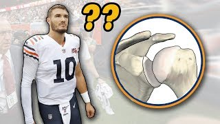 Doctor Reviews Mitch Trubisky Shoulder Injury and Shoulder Dislocations