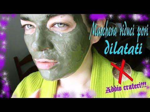 Maschera per ridurre i pori dilatati (FUNZIONA DAVVERO)
