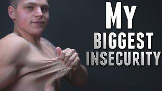 Anh chàng ko ngại ngần chia sẻ về việc giảm 72 kg của mình - Xem bộ da của anh ấy mà hãi hùng :|
