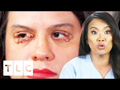 Dr  Lee Removes Numerous Cysts From Woman's Eyelids | Dr  Pimple