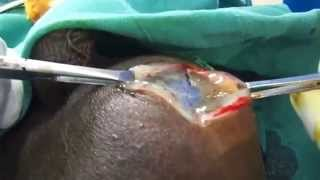 Fluid coming during Hydrocelectomy