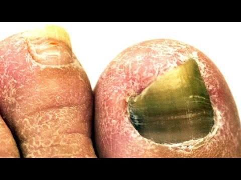 How to Get Rid of Nail Fungus forecast