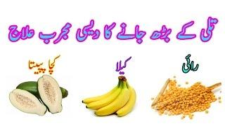 Tili kay bhar jane ka azmoda Nuskha   Best Home Remedy for Hepatitus   تلی کا بڑھ جانا