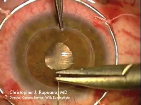 Combined Penetrating Keratoplasty (PK) and Cataract Surgery ( PK Triple Procedure)