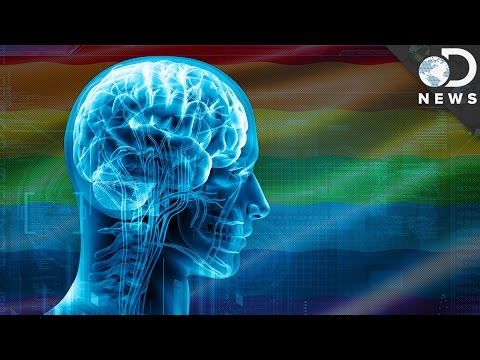 What Does The Transgender Brain Look Like