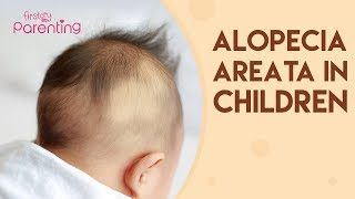 Alopecia Areata in Children - Causes, Signs & Treatment