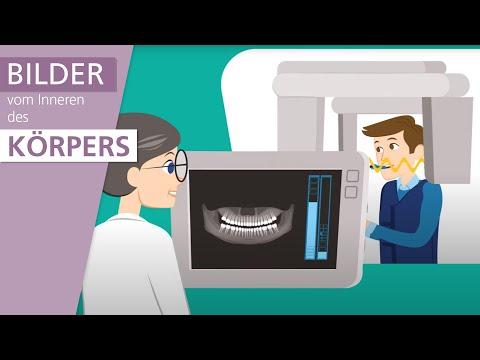 Wie funktioniert Röntgen?