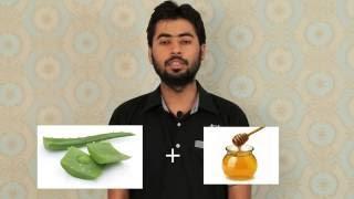 37 Aloe Vera ke fayde Hindi Me  Aloe vera benefits in Hindi