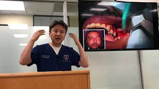 Newest and Latest in Sinus Lift Technique by Dr. Samuel Lee