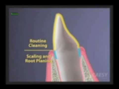 Dentist Glendale CA, Basic Dental Cleaning vs. Deep Dental Cleaning, Dr. Kamran Sahabi