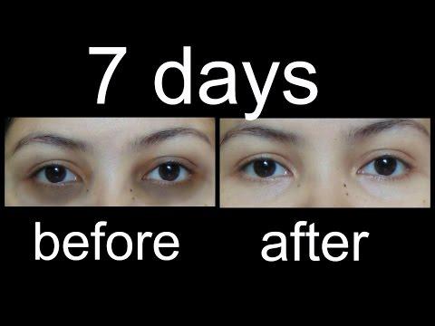 काले घेरों से कैसे छुटकारा पाएं/magical Home Remedies to remove Under eye Dark Circles (Hindi)