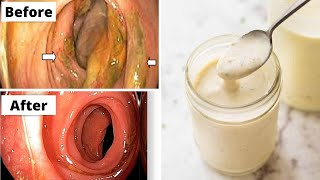 How to clean colon naturally ! Colon Cleanse at Home! colon clean drinks