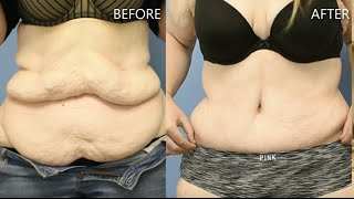 150 Pounds Extreme Makeover  With Tummy Tuck