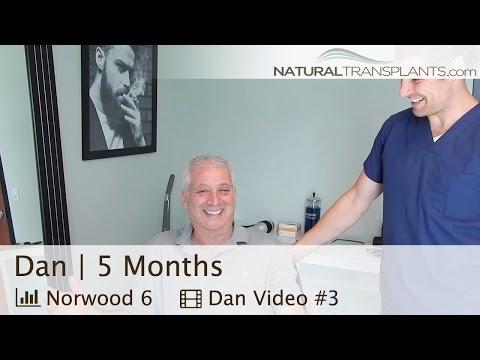 Hair Transplant Results, 5 Months Post-Op | FUT vs FUE Scar Truth | Orlando, Florida (Daniel)