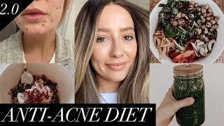 Anti-acne diet | Foods that cleared my skin!