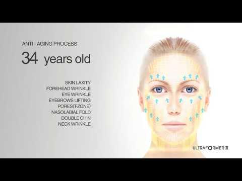 SMAS лифтинг лица: видимый результат уже после одной процедуры на аппарате ULTRAFORMER (HIFU)
