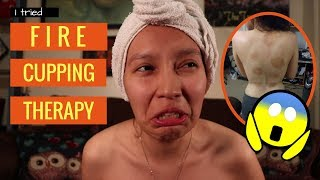 I Tried Fire Cupping Therapy