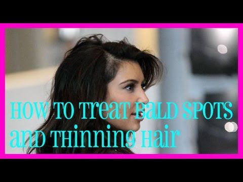 how to treat bald spots and thinning hair youtube