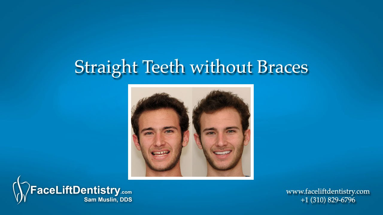 how to get straight teeth with braces
