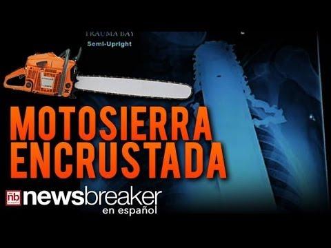 MOTOSIERRA INCRUSTADA: Hombre Sobrevive un Horrible Accidente de trabajo que Casi le Cuesta la Vida
