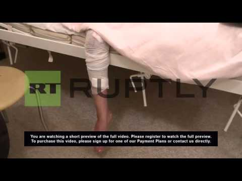 Ukraine: This Donetsk woman has lost her leg and family