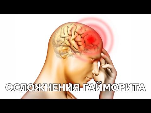 0 - Що робити при головному болю при синуситі