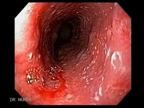Endoscopy of Infectious Esophagitis