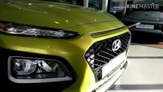 Hyundai KONA interior & exterior SULIT!!