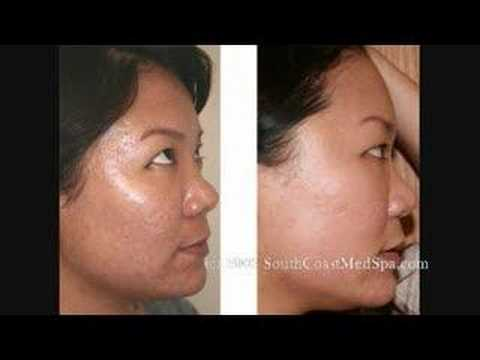 Laser Acne Scar Removal Treatment - Asian Patient