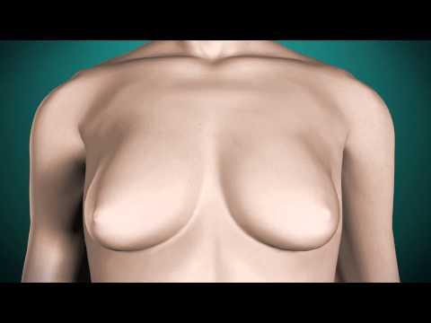 Operacja powiększenia piersi