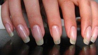 Как отрастить длинные и крепкие ногти? За неделю