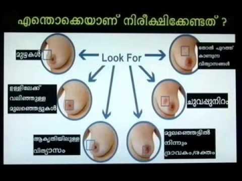 Breast Self examination MALAYALAM
