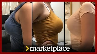 Buying breast implants: Hidden camera investigation (Marketplace)