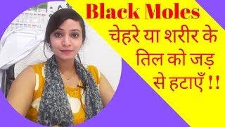Mole removal homeopathic medicine | Black Mole removal medicine in homeopathy | Mole treatment