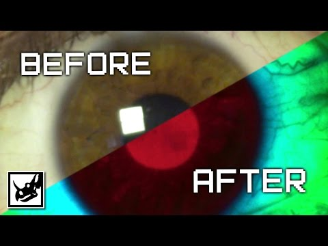 Xbox One: Before & After
