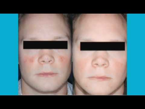 Acne Treatment with Vbeam Laser Technology