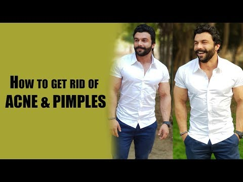 How to get rid of ACNE & PIMPLES | AMIT PANGHAL | PANGHAL FITNESS