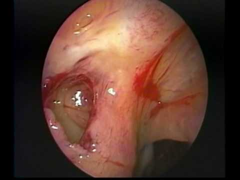 Endoscopic Drainage of a Type 2 Hypoplastic Maxillary Sinus