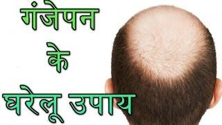 गंजेपन का रामबाण इलाज -Baldness home remedie-  Hair Loss Treatment( Ganjepan Ka Ilaj)