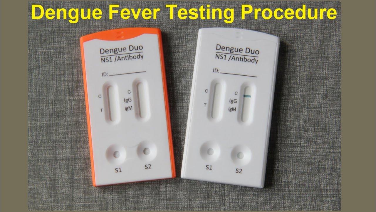 Test Dengue Fever Dengue Fever Testing Procedure