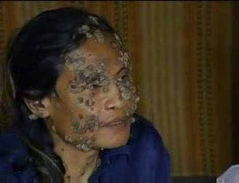 An Indonesian man who suffers from a rare disease which causes tree-like growths all over his body is seeking help from American medics. Subscribe to The Sho...