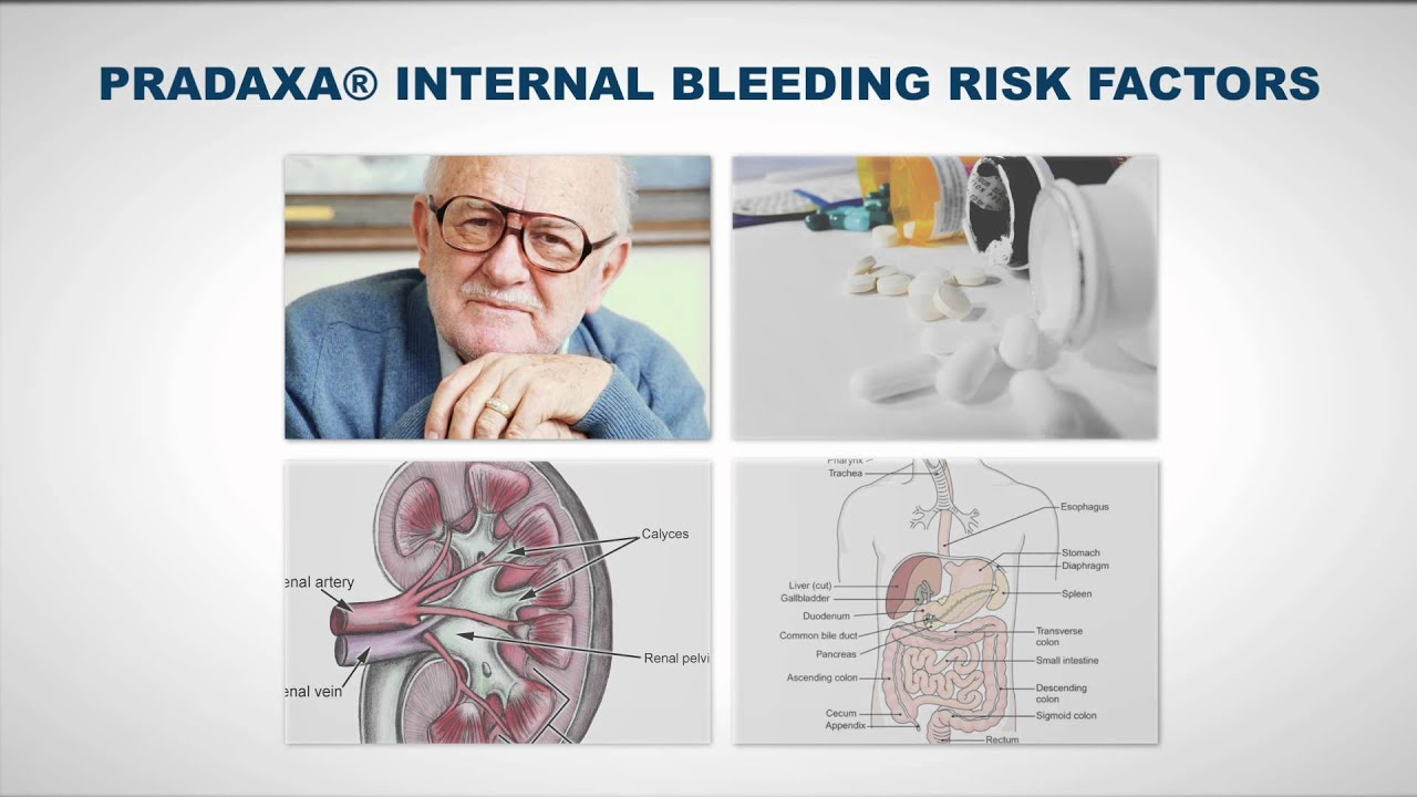 how to stop internal bleeding when on blood thinners