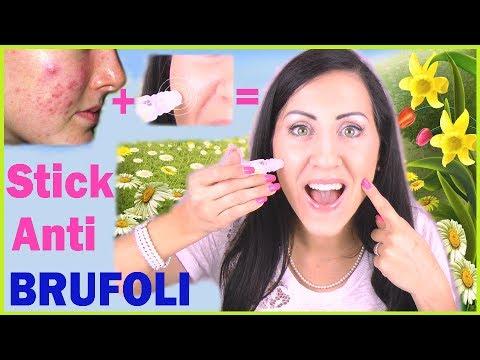 STICK ANTI BRUFOLI Facilissimo con SOLO 2 Ingredienti !!!