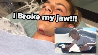 BROKEN JAW!?!?!? *BLOOD WARNING*
