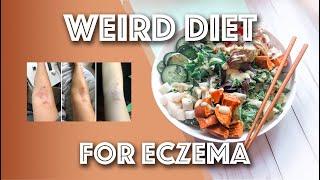 My Weird Diet that Heals Eczema Faster! Low Carb, Gut Healing // Michelle Mills